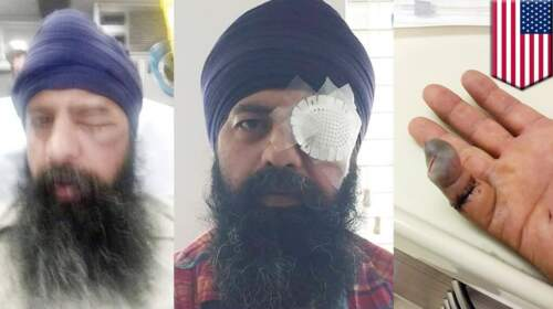 American Sikh attacked by white man for hate crime in Colorado